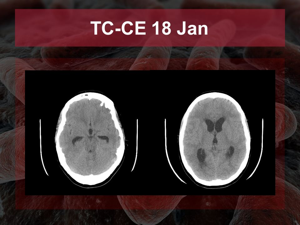 TC-CE 18 Jan