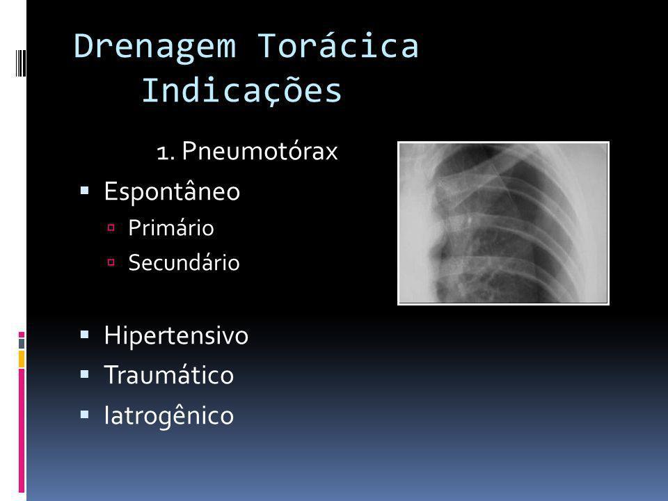 1. Pneumotórax Espontâneo Primário Secundário Hipertensivo Traumático Iatrogênico Drenagem Torácica Indicações