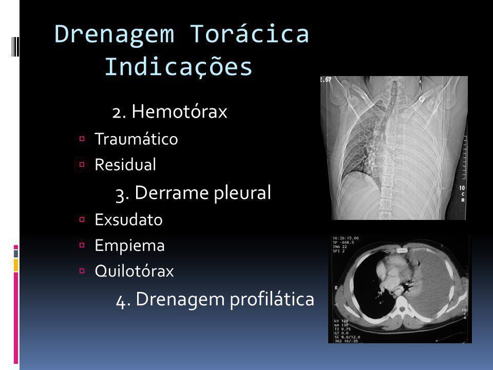 2. Hemotórax Traumático Residual 3. Derrame pleural Exsudato Empiema Quilotórax 4. Drenagem profilática Drenagem Torácica Indicações