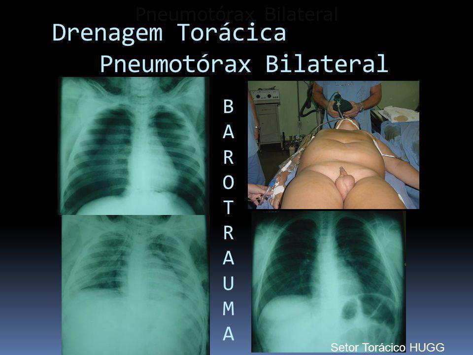 Pneumotórax Bilateral Drenagem Torácica Pneumotórax Bilateral BAROTRAUMABAROTRAUMA Setor Torácico HUGG