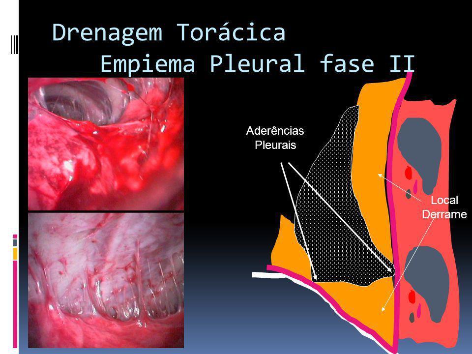 Aderências Pleurais Local Derrame Drenagem Torácica Empiema Pleural fase II
