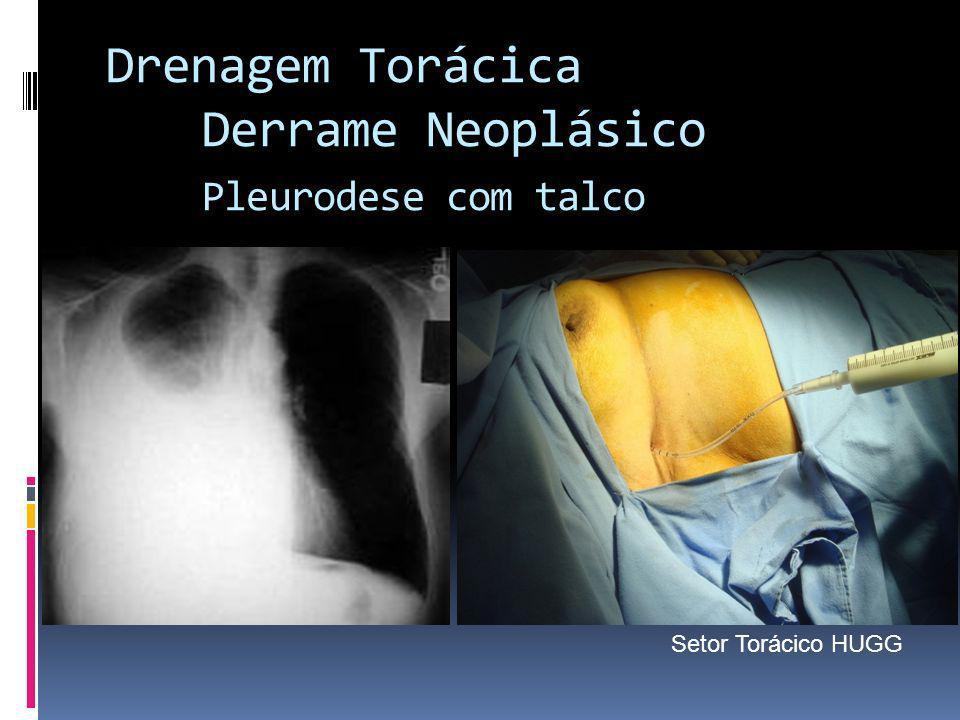 Drenagem Torácica Derrame Neoplásico Pleurodese com talco Setor Torácico HUGG