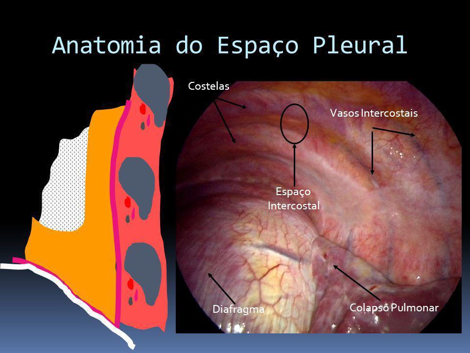 Costelas Vasos Intercostais Espaço Intercostal Diafragma Colapso Pulmonar Anatomia do Espaço Pleural