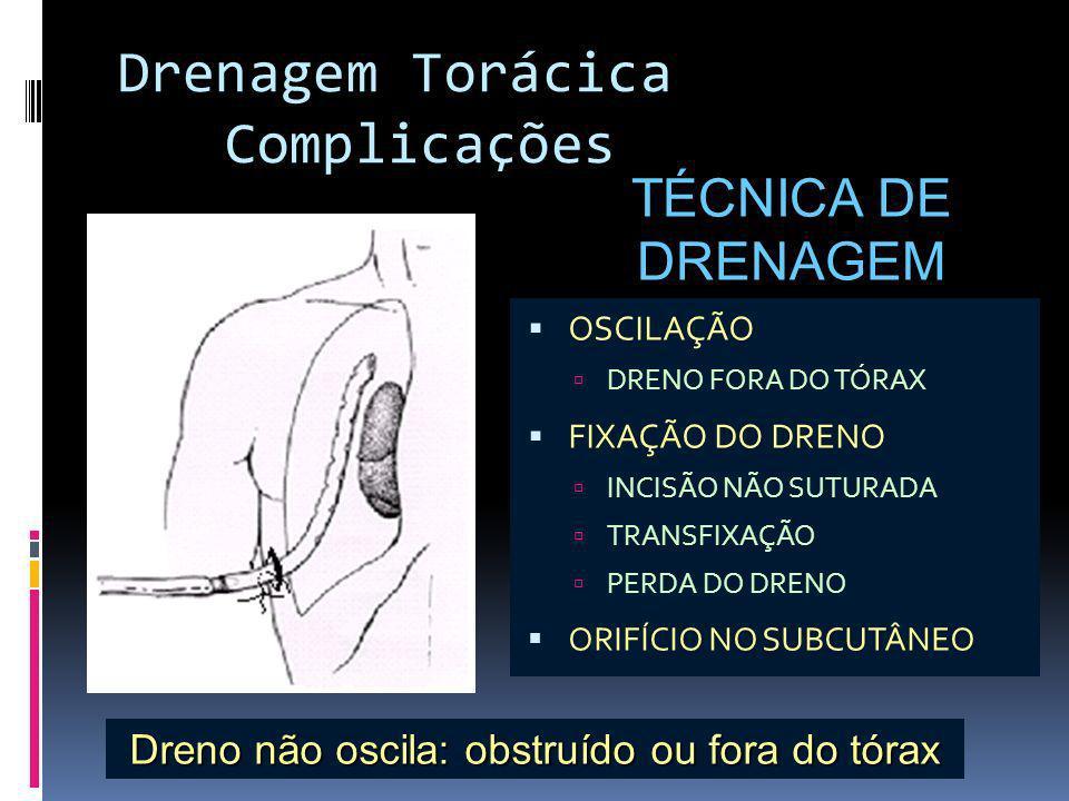 TÉCNICA DE DRENAGEM OSCILAÇÃO DRENO FORA DO TÓRAX FIXAÇÃO DO DRENO INCISÃO NÃO SUTURADA TRANSFIXAÇÃO PERDA DO DRENO ORIFÍCIO NO SUBCUTÂNEO Dreno não o