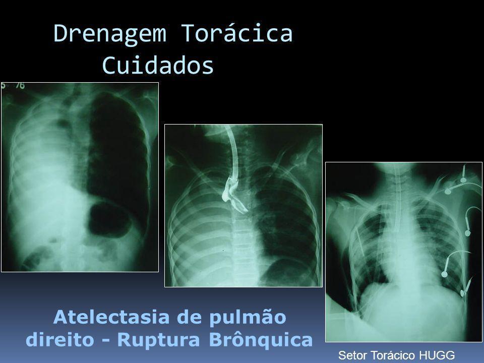 Atelectasia de pulmão direito - Ruptura Brônquica Drenagem Torácica Cuidados Setor Torácico HUGG