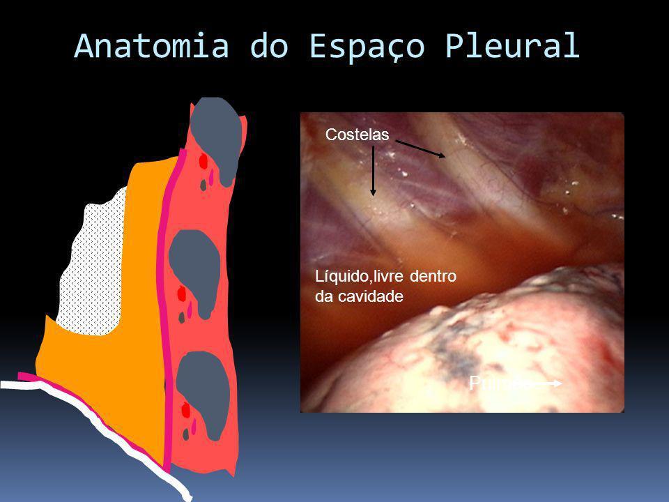 Líquido,livre dentro da cavidade Pulmão Costelas Anatomia do Espaço Pleural