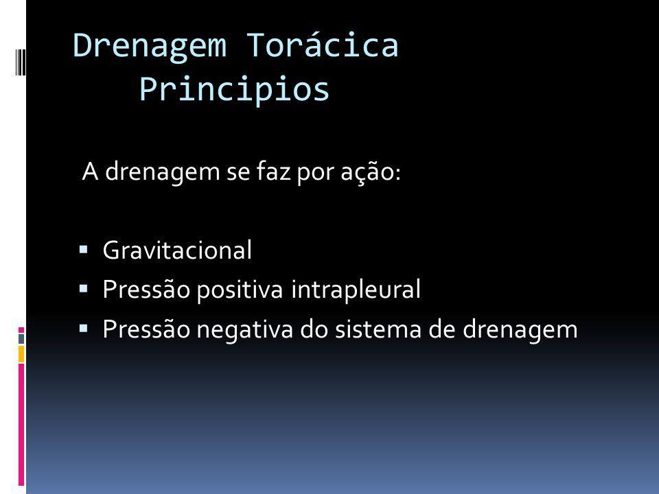 A drenagem se faz por ação: Gravitacional Pressão positiva intrapleural Pressão negativa do sistema de drenagem Drenagem Torácica Principios