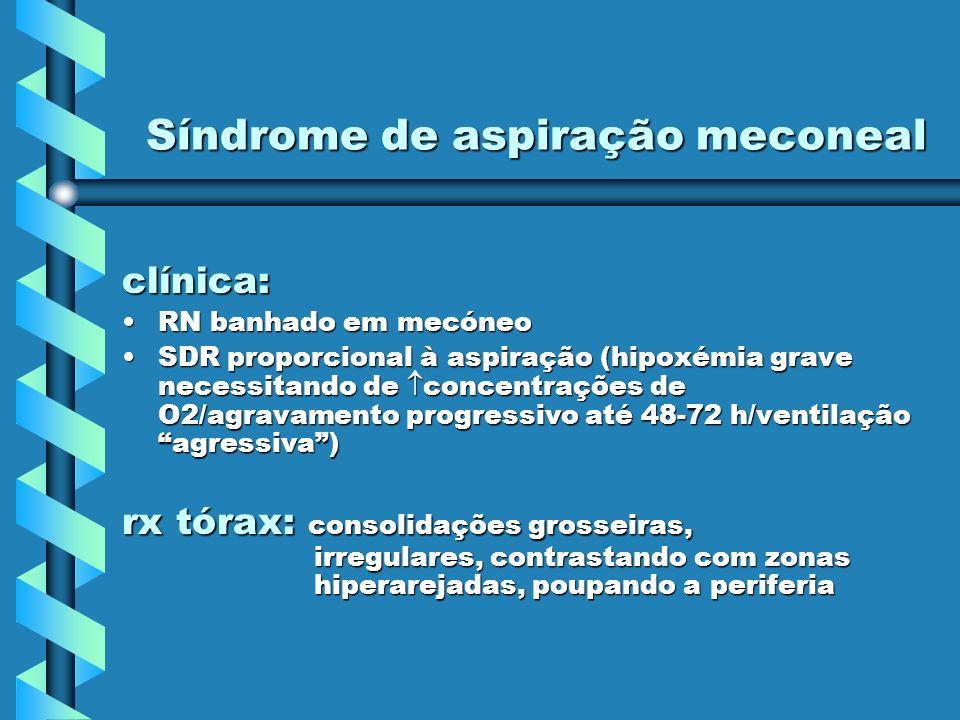 Síndrome de aspiração meconeal clínica: RN banhado em mecóneoRN banhado em mecóneo SDR proporcional à aspiração (hipoxémia grave necessitando de conce