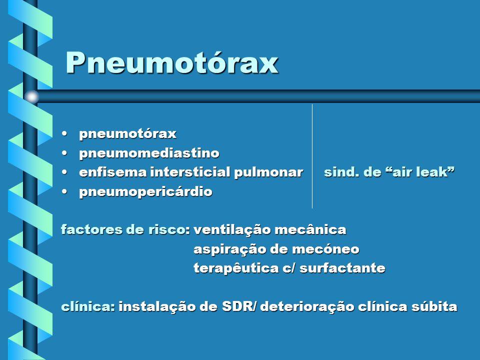 Pneumotórax pneumotóraxpneumotórax pneumomediastinopneumomediastino enfisema intersticial pulmonar sind. de air leakenfisema intersticial pulmonar sin