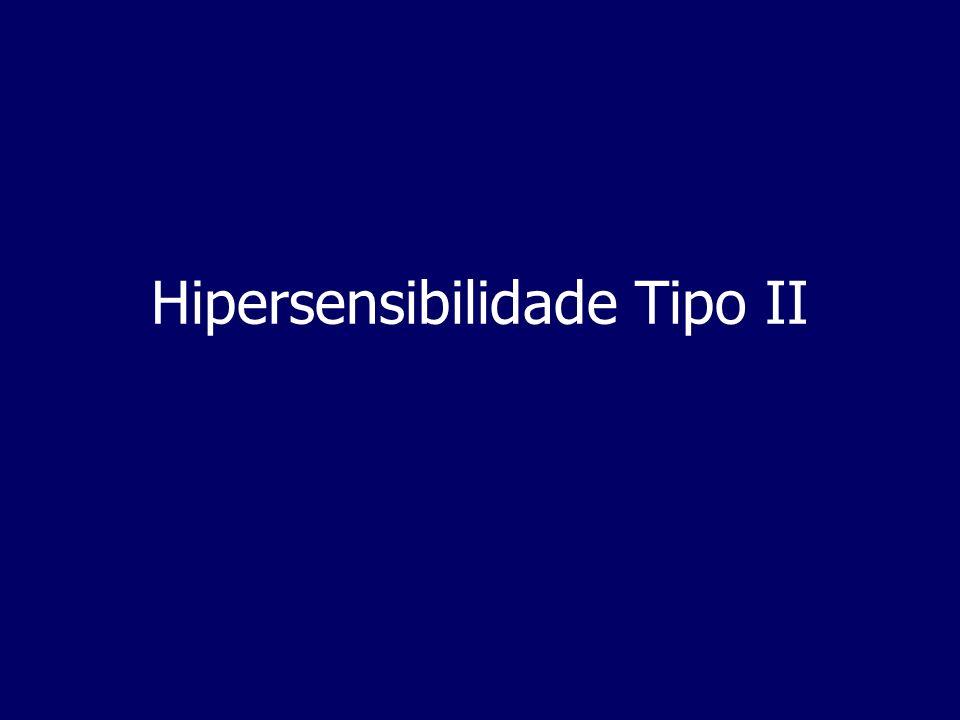 Hipersensibilidade Tipo II