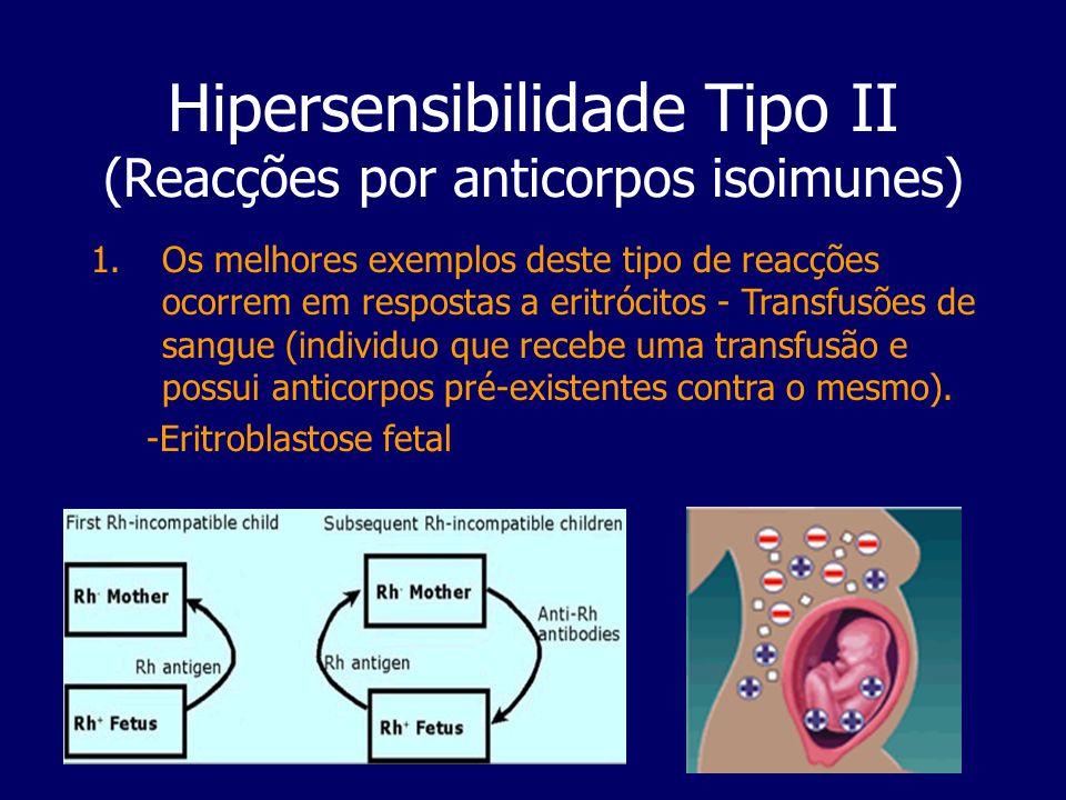 Hipersensibilidade Tipo II (Reacções por anticorpos isoimunes) 1.Os melhores exemplos deste tipo de reacções ocorrem em respostas a eritrócitos - Tran
