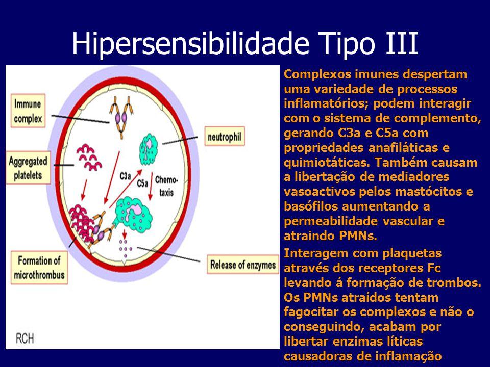 Hipersensibilidade Tipo III Complexos imunes despertam uma variedade de processos inflamatórios; podem interagir com o sistema de complemento, gerando