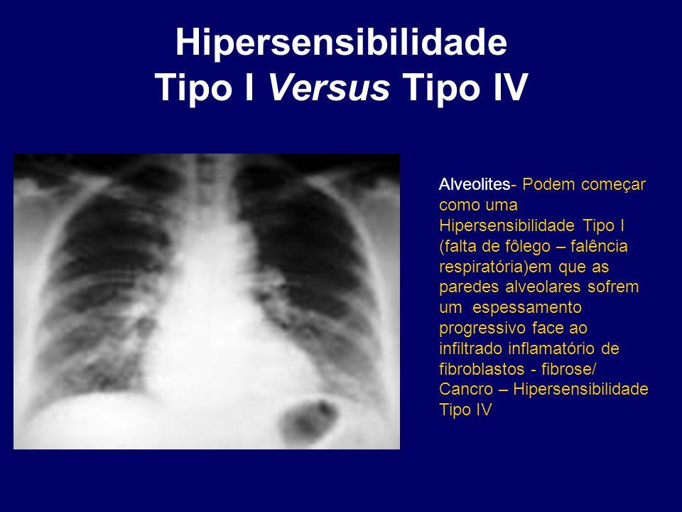 Alveolites- Podem começar como uma Hipersensibilidade Tipo I (falta de fôlego – falência respiratória)em que as paredes alveolares sofrem um espessame