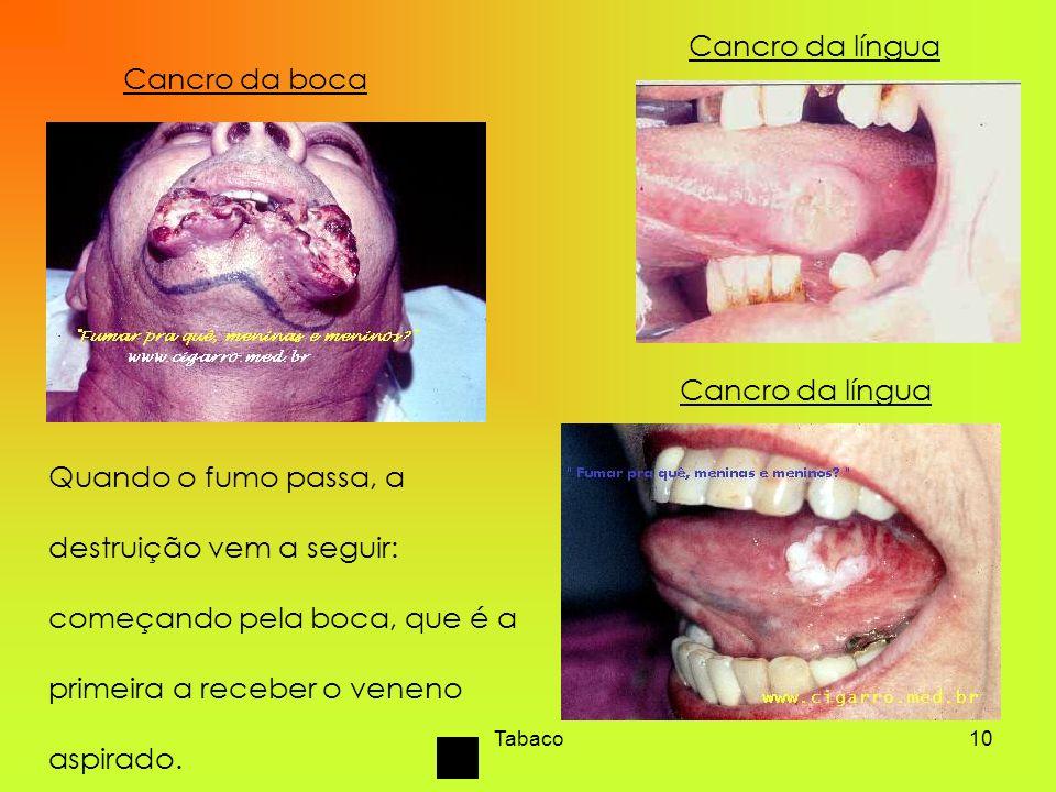 Tabaco10 Cancro da boca Cancro da língua Quando o fumo passa, a destruição vem a seguir: começando pela boca, que é a primeira a receber o veneno aspi
