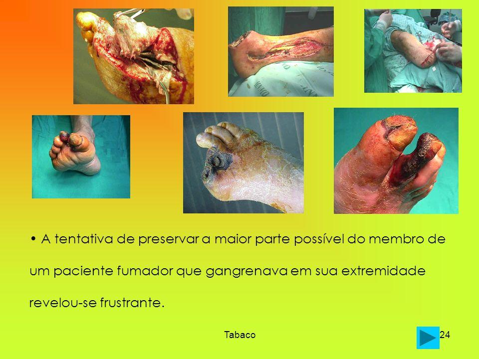 Tabaco24 A tentativa de preservar a maior parte possível do membro de um paciente fumador que gangrenava em sua extremidade revelou-se frustrante.