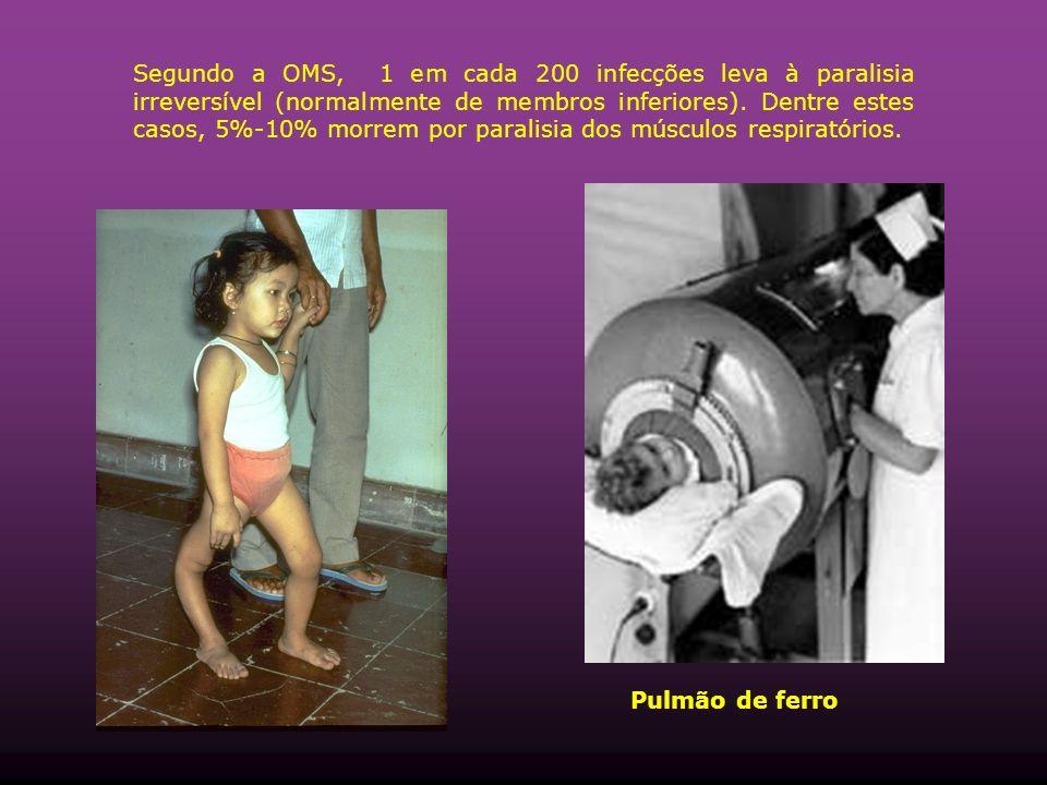 Segundo a OMS, 1 em cada 200 infecções leva à paralisia irreversível (normalmente de membros inferiores).