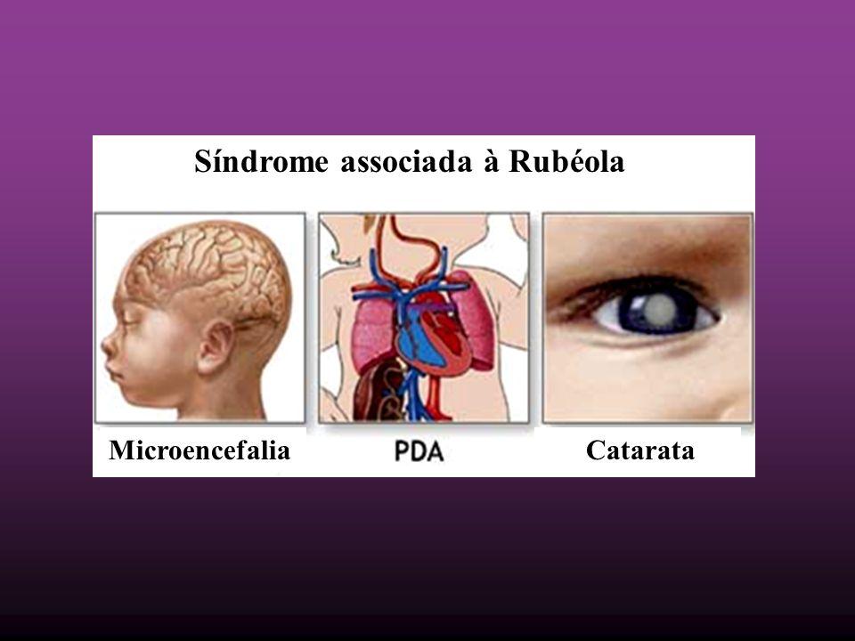Síndrome associada à Rubéola Microencefalia Catarata
