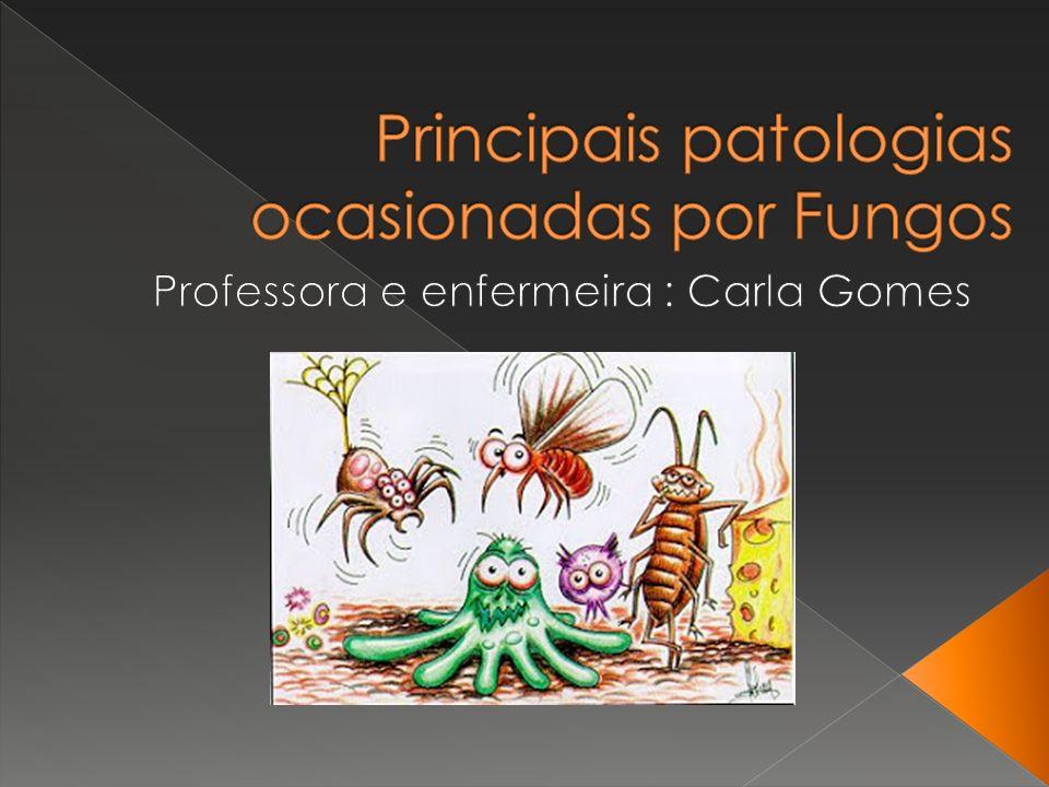 Doença de Chagas: Uma das doenças mais importantes no Brasil, tem seu nome dado em homenagem a Carlos Chagas, seu descobridor.