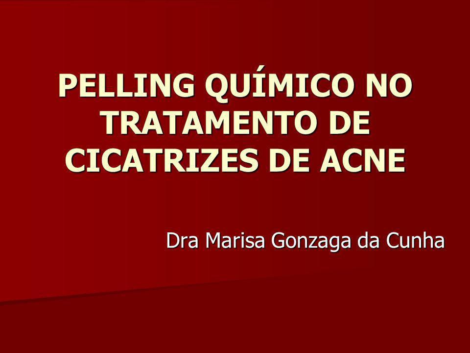PELLING QUÍMICO NO TRATAMENTO DE CICATRIZES DE ACNE Dra Marisa Gonzaga da Cunha