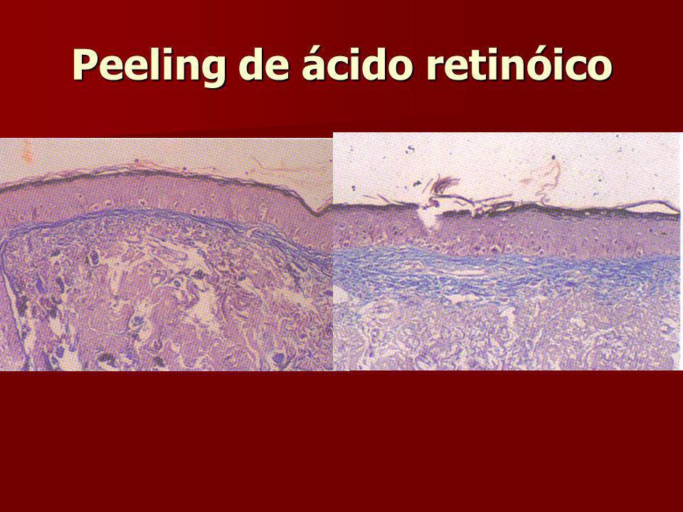 Peeling de ácido retinóico