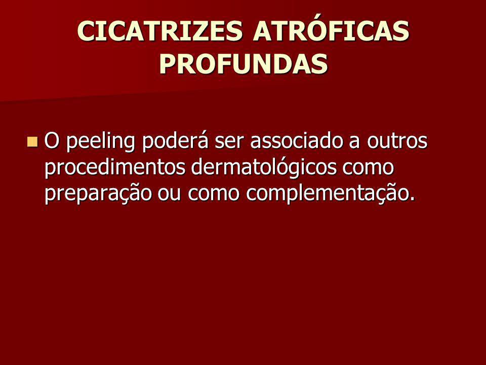 CICATRIZES ATRÓFICAS PROFUNDAS O peeling poderá ser associado a outros procedimentos dermatológicos como preparação ou como complementação. O peeling