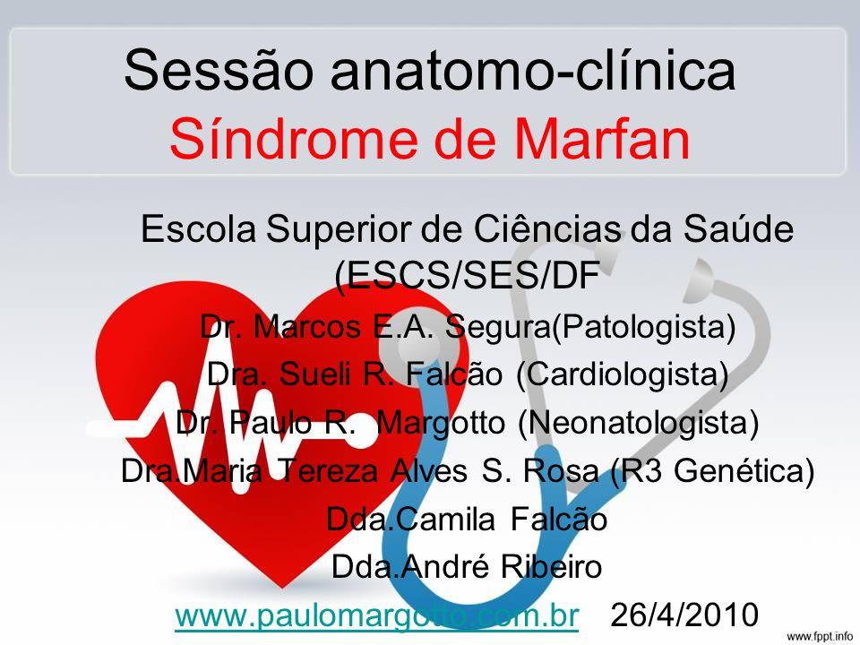 Sessão anatomo-clínica Síndrome de Marfan Escola Superior de Ciências da Saúde (ESCS/SES/DF Dr. Marcos E.A. Segura(Patologista) Dra. Sueli R. Falcão (