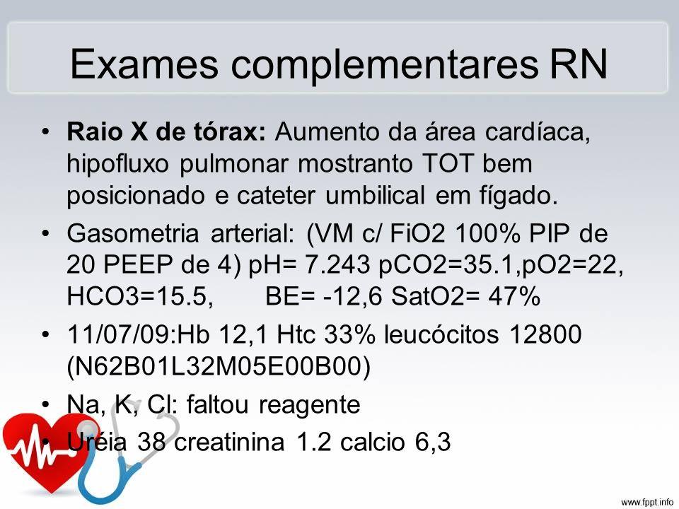 Exames complementares RN Raio X de tórax: Aumento da área cardíaca, hipofluxo pulmonar mostranto TOT bem posicionado e cateter umbilical em fígado. Ga