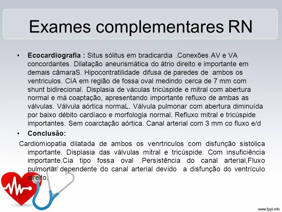 Exames complementares RN Ecocardiografia : Situs sólitus em bradicardia.Conexões AV e VA concordantes. Dilatação aneurismática do átrio direito e impo