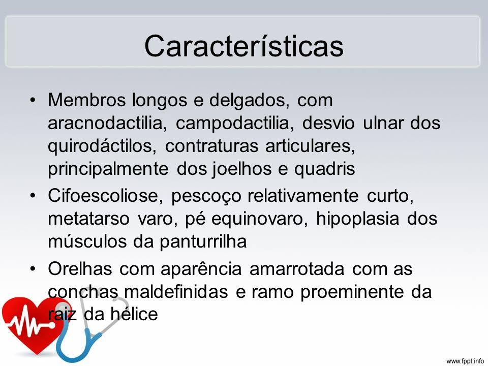 Características Membros longos e delgados, com aracnodactilia, campodactilia, desvio ulnar dos quirodáctilos, contraturas articulares, principalmente