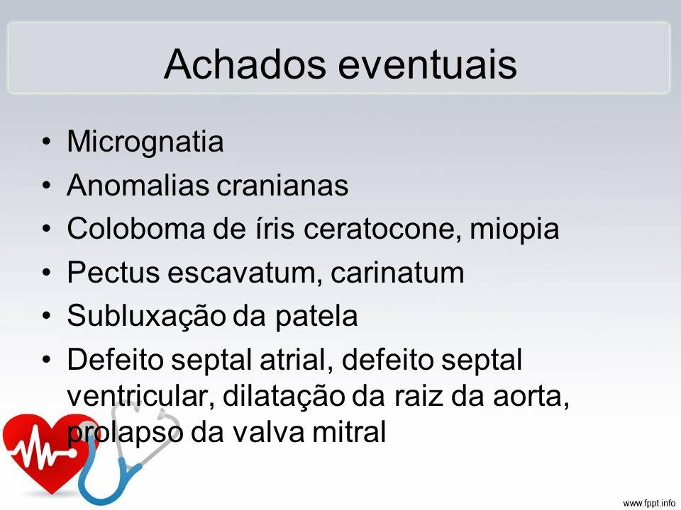 Achados eventuais Micrognatia Anomalias cranianas Coloboma de íris ceratocone, miopia Pectus escavatum, carinatum Subluxação da patela Defeito septal