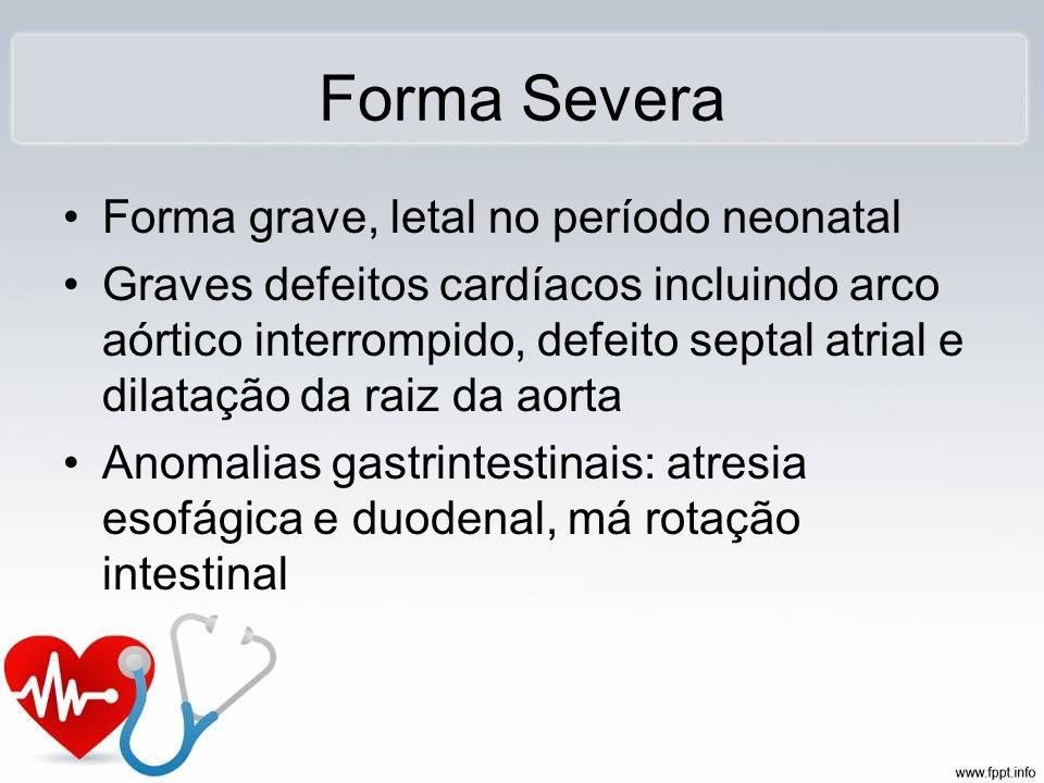 Forma Severa Forma grave, letal no período neonatal Graves defeitos cardíacos incluindo arco aórtico interrompido, defeito septal atrial e dilatação d