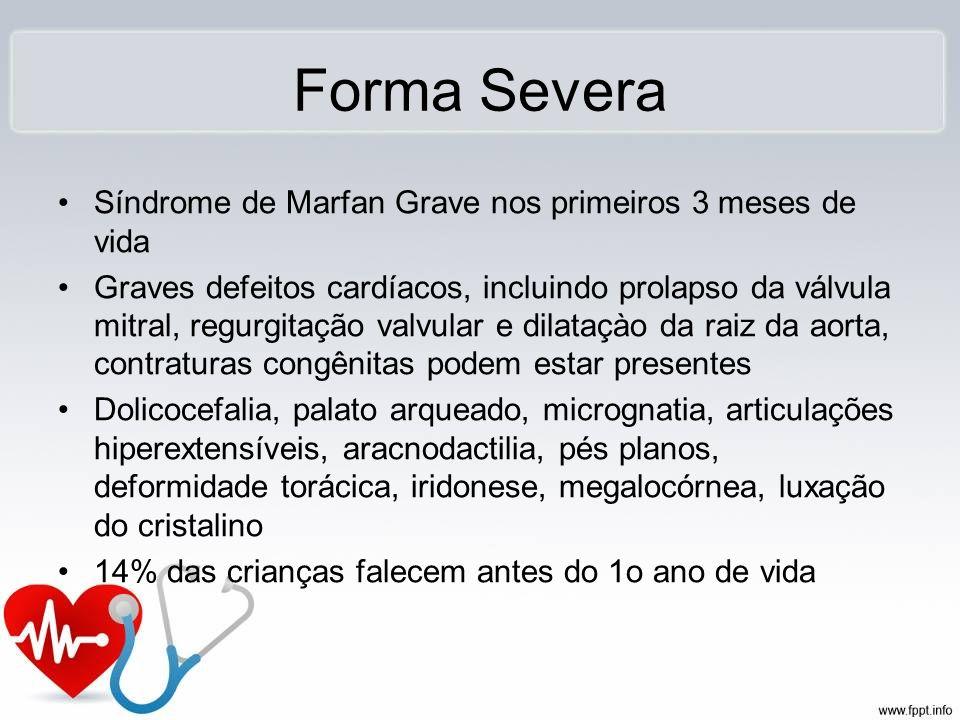 Forma Severa Síndrome de Marfan Grave nos primeiros 3 meses de vida Graves defeitos cardíacos, incluindo prolapso da válvula mitral, regurgitação valv
