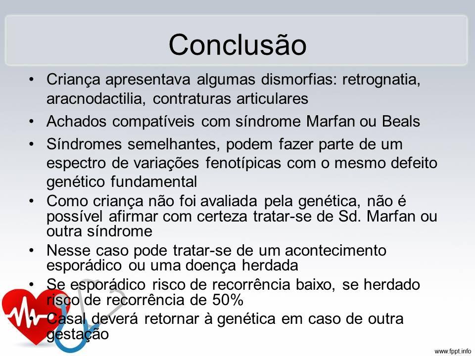 Conclusão Criança apresentava algumas dismorfias: retrognatia, aracnodactilia, contraturas articulares Achados compatíveis com síndrome Marfan ou Beal