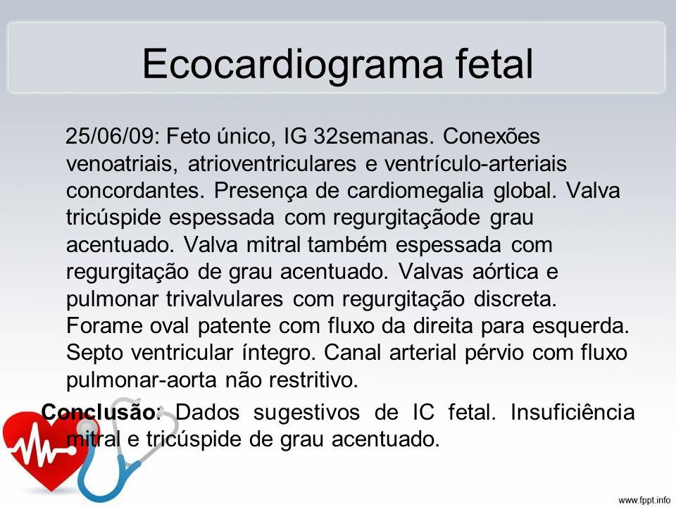 Ecocardiograma fetal 25/06/09: Feto único, IG 32semanas. Conexões venoatriais, atrioventriculares e ventrículo-arteriais concordantes. Presença de car