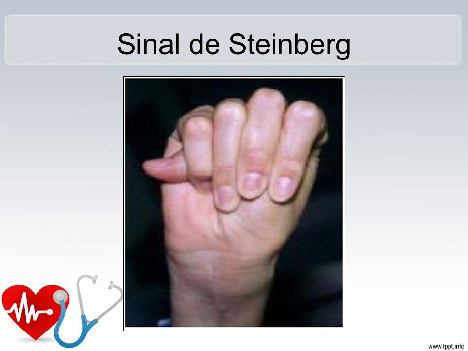 Sinal de Steinberg