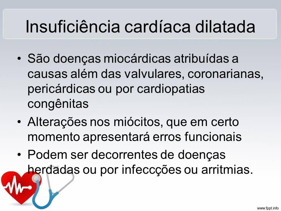 Insuficiência cardíaca dilatada São doenças miocárdicas atribuídas a causas além das valvulares, coronarianas, pericárdicas ou por cardiopatias congên