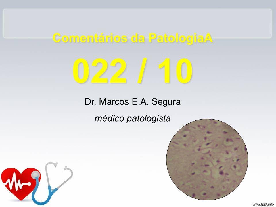 Comentários da PatologiaA 022 / 10 Dr. Marcos E.A. Segura médico patologista