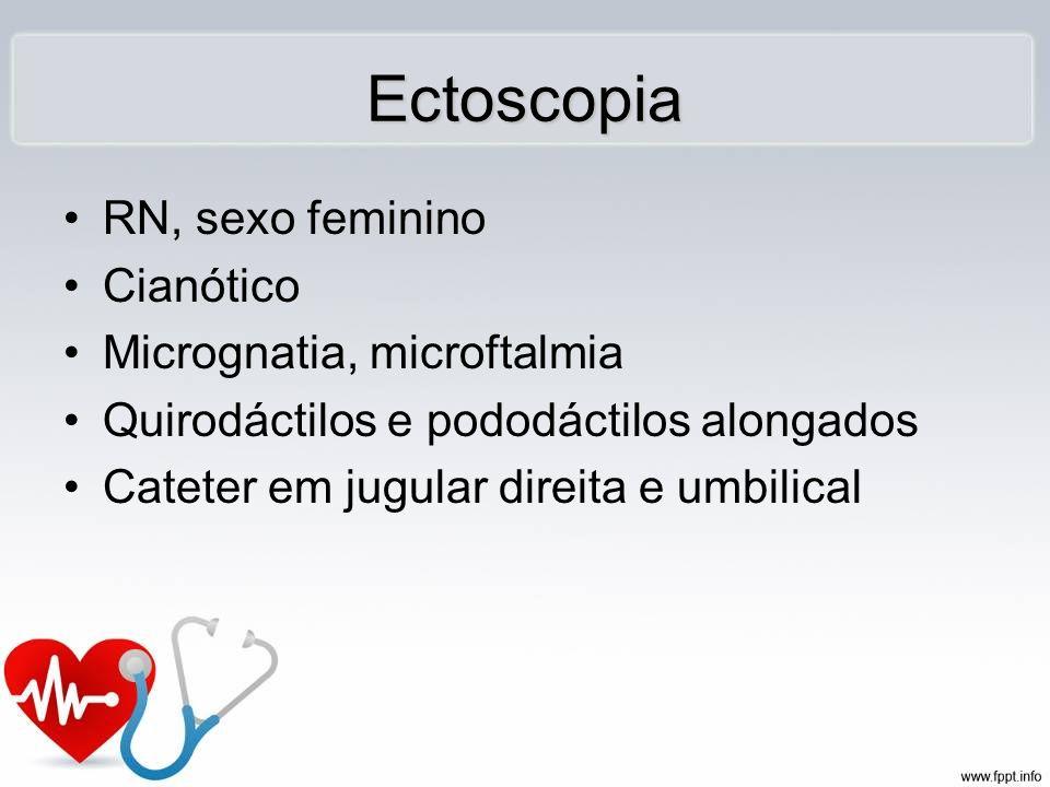 RN, sexo feminino Cianótico Micrognatia, microftalmia Quirodáctilos e pododáctilos alongados Cateter em jugular direita e umbilical Ectoscopia