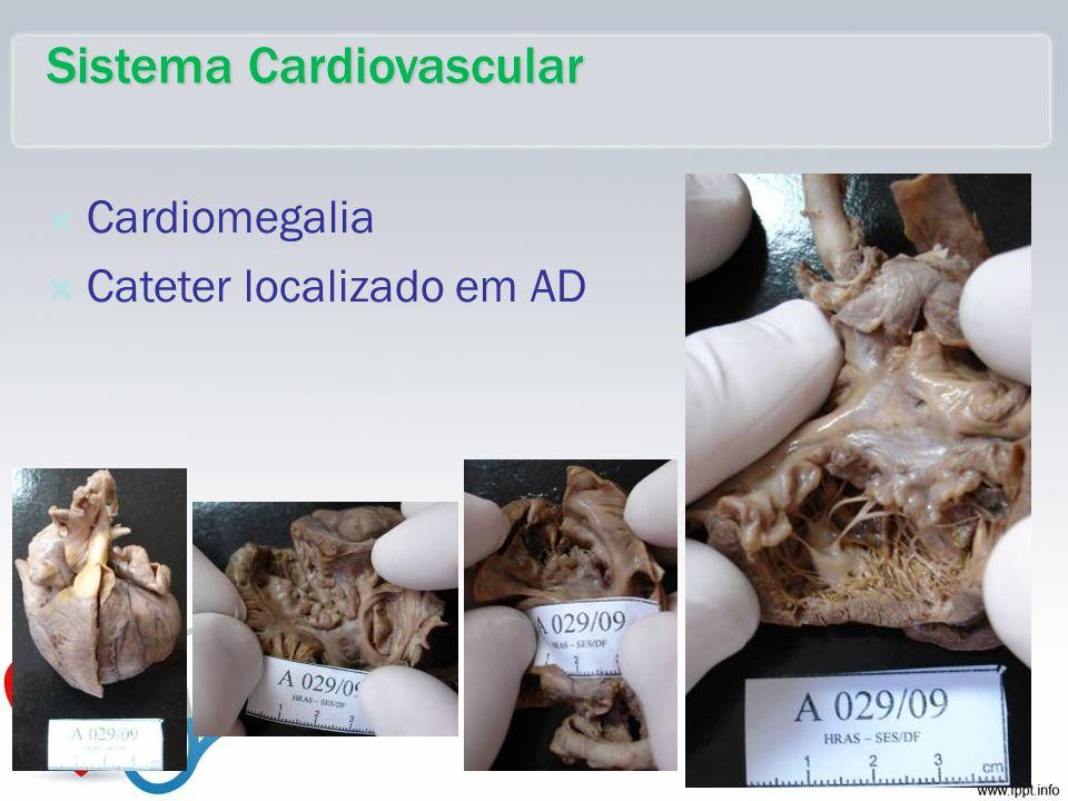 Cardiomegalia Cateter localizado em AD Sistema Cardiovascular
