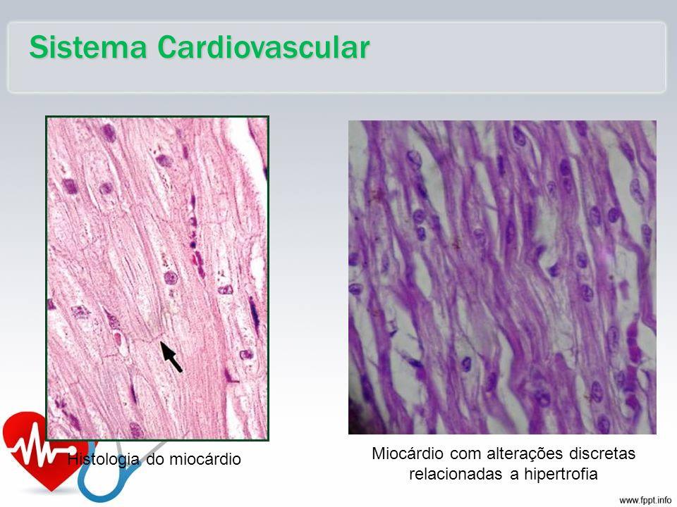 Miocárdio com alterações discretas relacionadas a hipertrofia Histologia do miocárdio