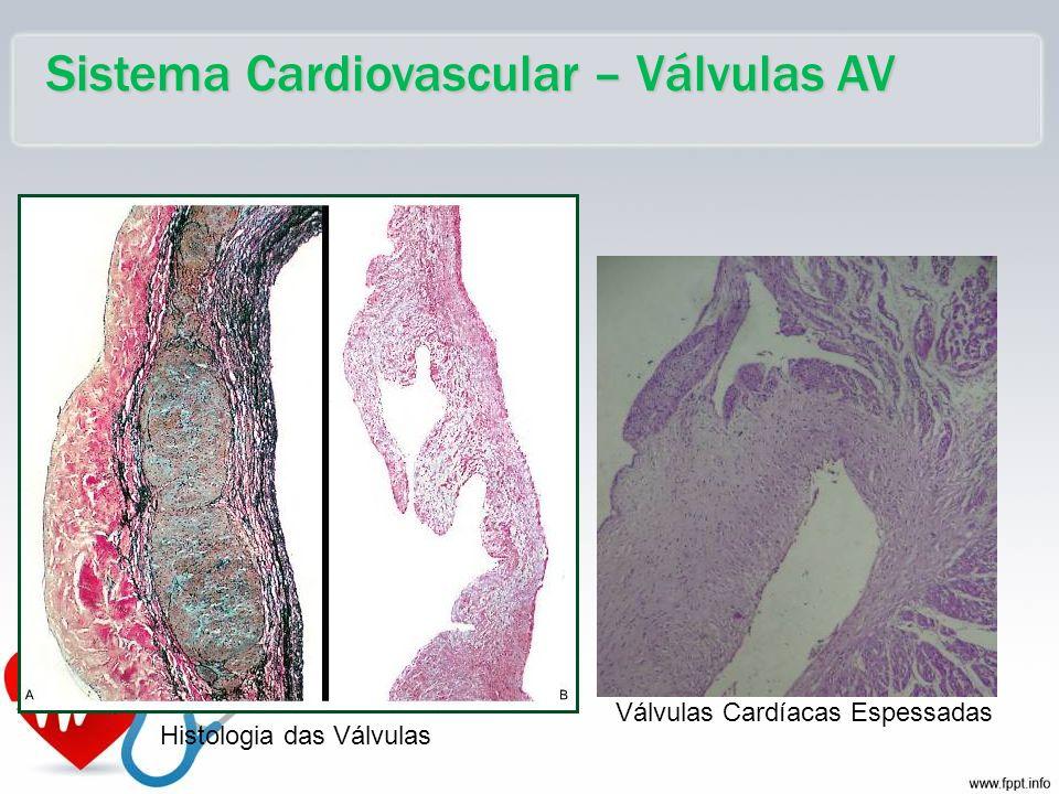 Sistema Cardiovascular – Válvulas AV Válvulas Cardíacas Espessadas Histologia das Válvulas