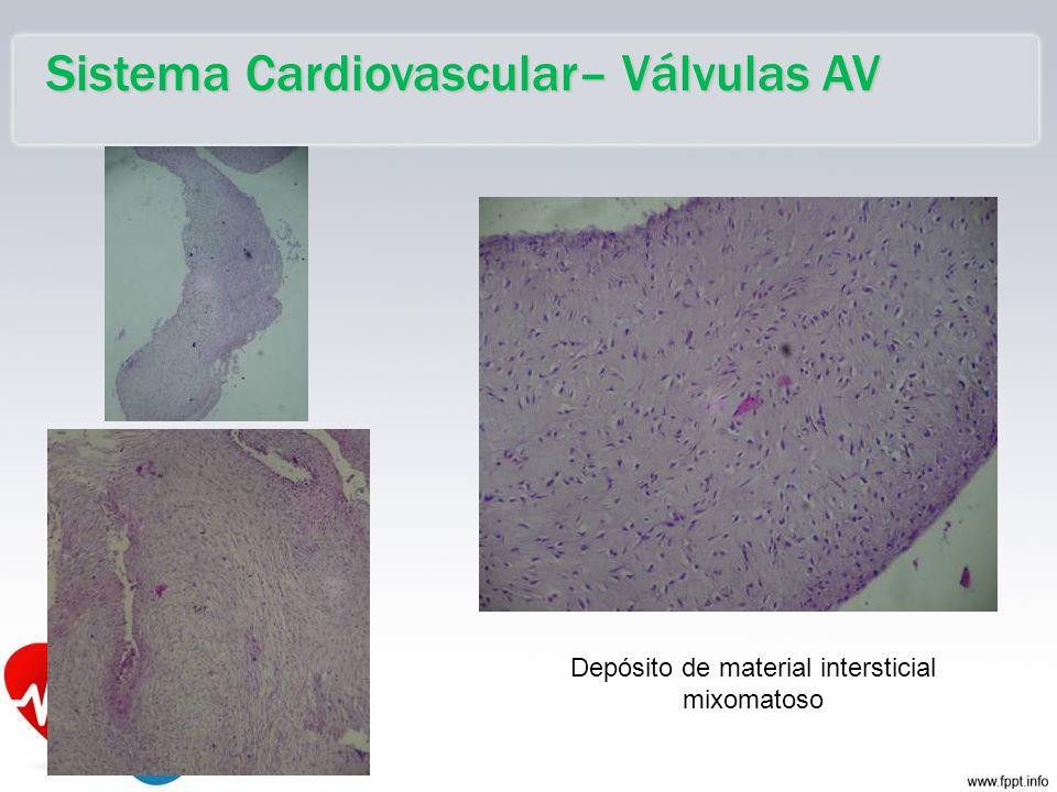 Sistema Cardiovascular– Válvulas AV Depósito de material intersticial mixomatoso