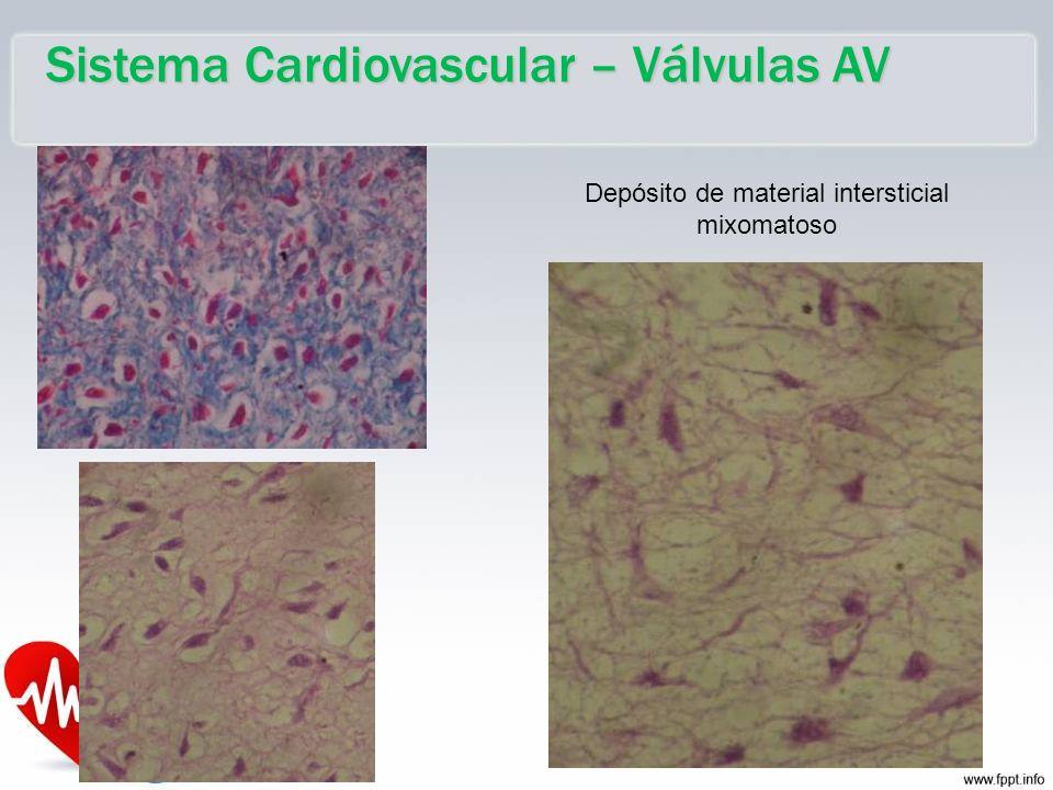 Sistema Cardiovascular – Válvulas AV Depósito de material intersticial mixomatoso