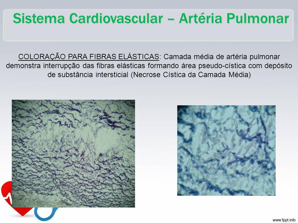 Sistema Cardiovascular – Artéria Pulmonar COLORAÇÃO PARA FIBRAS ELÁSTICAS: Camada média de artéria pulmonar demonstra interrupção das fibras elásticas