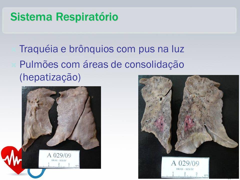 Traquéia e brônquios com pus na luz Pulmões com áreas de consolidação (hepatização) Sistema Respiratório