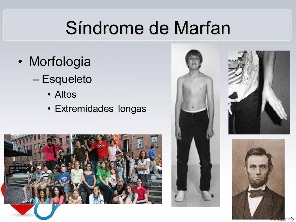 Síndrome de Marfan Morfologia –Esqueleto Altos Extremidades longas
