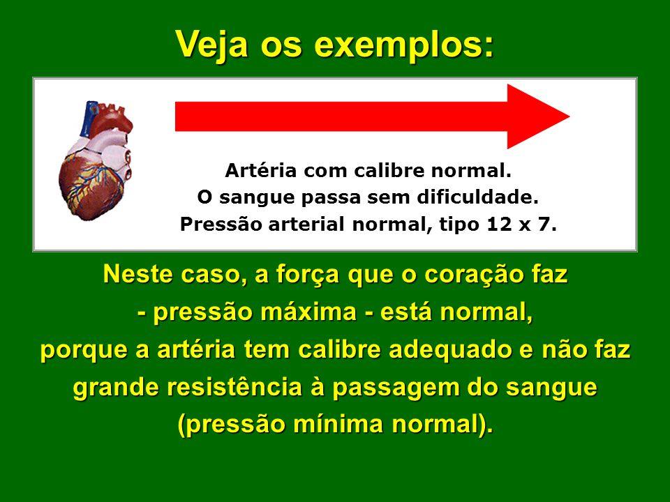 A pressão arterial depende da largura (calibre) da artéria. Artérias com calibre normal permitem que as pressões máxima e mínima sejam também normais.