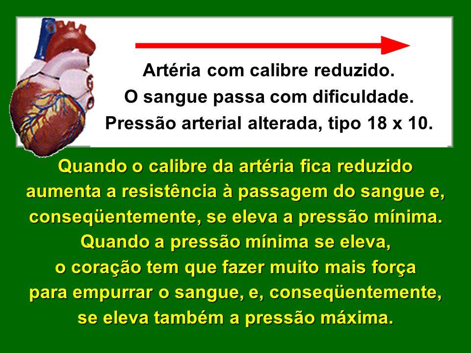 Artéria com calibre normal. O sangue passa sem dificuldade. Pressão arterial normal, tipo 12 x 7. Veja os exemplos: Neste caso, a força que o coração