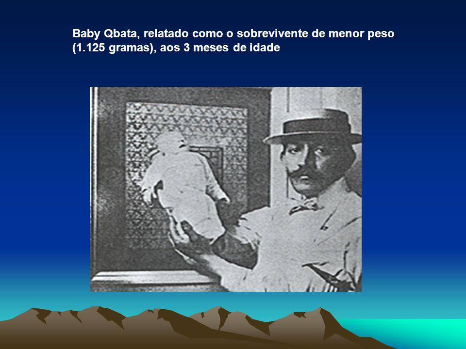 Baby Qbata, relatado como o sobrevivente de menor peso (1.125 gramas), aos 3 meses de idade
