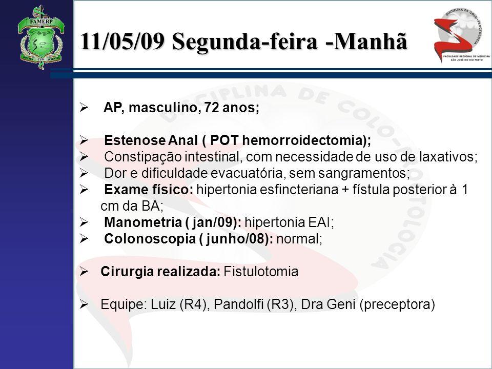 11/05/09 Segunda-feira -Manhã AP, masculino, 72 anos; Estenose Anal ( POT hemorroidectomia); Constipação intestinal, com necessidade de uso de laxativ